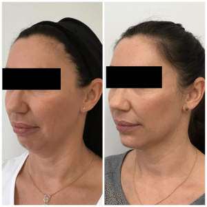 Before and Afters - Aésthetica | Botox Auckland | Dermal