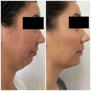 Before and Afters - Aésthetica | Botox Auckland | Dermal Filler