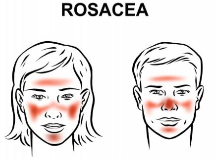 red face rosacea dr patti piper